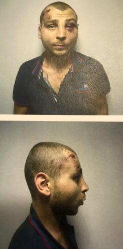 Prozorov torture victim