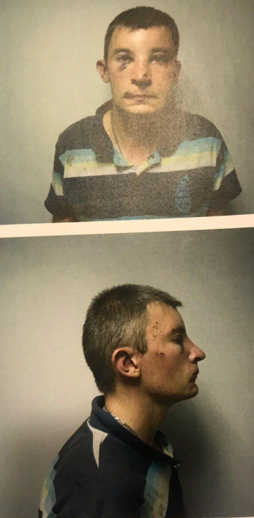 Prozorov torture victim2